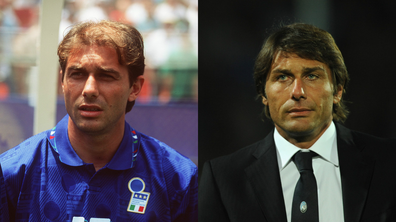 Antonio Conte before and after follicle treatment.